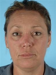 Front View Before Facial Rejuvenation Procedures