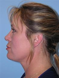 Side View After Cosmetic Plastic Surgery