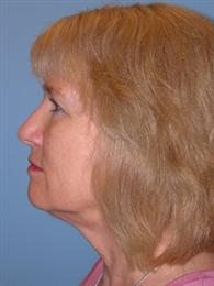 Side Before Facial Rejuvenation Procedures
