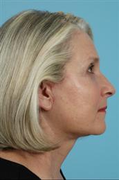Side View After Facial Rejuvenation Procedures