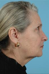 Side View Before Facial Rejuvenation Procedures