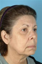 Oblique View Before Facial Rejuvenation Procedures