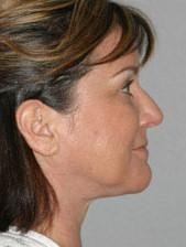 Side View After Neck Lift