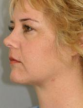 Oblique View After Neck Lift
