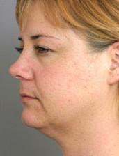 Oblique View Before Neck Lift