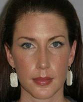 Front View After Rhinoplasty