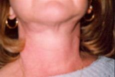 Front View After Necklift