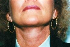 Close Up After Necklift