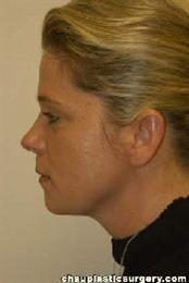 Side View After Neck Liposuction