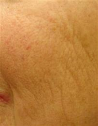 After Laser Treatment