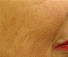Close Up After Laser Skin Resurfacing