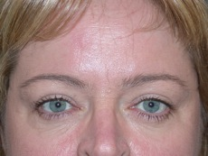 Front After Blepharoplasty