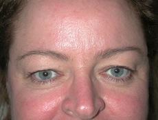 Front Before Blepharoplasty