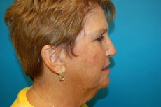 Side View Before Chin Augmentation