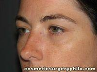 Oblique After Eyelid Surgery