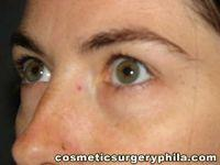 Oblique Before Eyelid Surgery