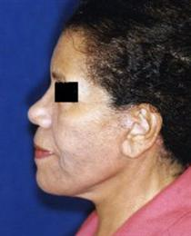 After Necklift Side View