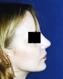 Right Side View After Nose Reshaping