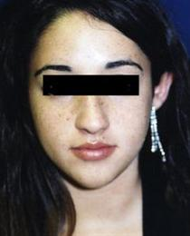 Front View Before Rhinoplasty