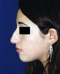 Left Side View Before Rhinoplasty