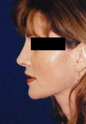 Side View After Nose Reshaping