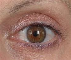 Woman Close Up After Blepharoplasty