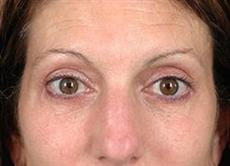 Woman Front View After Blepharoplasty