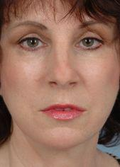 After Facelift, Browlifts and Blepharoplasty on Four Lids