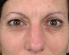 Woman Front View Before Blepharoplasty