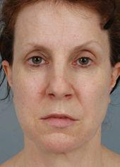 Before Facelift, Browlifts and Blepharoplasty on Four Lids