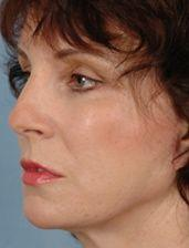 Oblique View of Patient After Facelift, Browlifts & Blepharoplasty on Four Lids