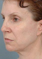 Oblique View of Patient Before Facelift, Browlifts & Blepharoplasty on Four Lids