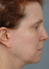 Side View Before Facelift, Browlifts & Blepharoplasty on Four Lids