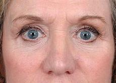 Woman After Lower Blepharoplasty Surgery