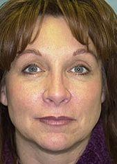 Female Patient After Blepharoplasty, Brow Lift and Laser Skin Resurfacing