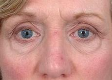 Woman Before Lower Blepharoplasty Surgery