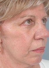 66-Year old Patient After Blepharoplasty and Face lift Oblique View
