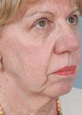 66-Year old Patient Before Blepharoplasty and Face lift Oblique View
