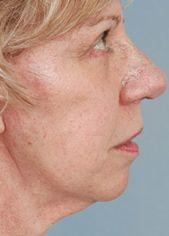 66-Year old Patient After Blepharoplasty and Face lift Side View
