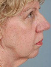 66-Year old Patient Before Blepharoplasty and Facelift