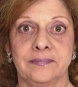 57 Year Old Patient Before MACS Face Lift Front View