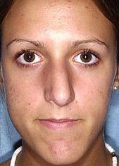 Young Patient Receives Nose Job - Before Photo