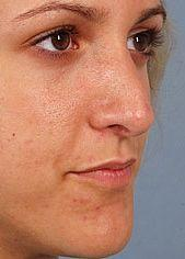 Young Patient Receives Nose Job - After Photo, Oblique