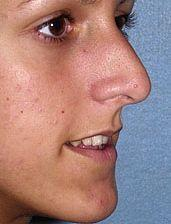 Young Patient Receives Nose Job - Before Photo, Oblique