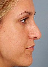 Young Patient Receives Nose Job - After Photo, Side View
