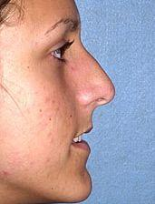 Young Patient Receives Nose Job - Before Photo, Side View