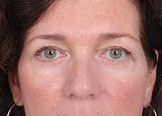 Front View of Woman Who Received Double Blepharoplasty