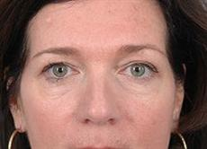 Front View of Woman Before Double Blepharoplasty