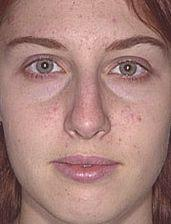19-Year Old Receives Rhinoplasty - Before Photo