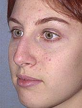 19-Year Old Receives Rhinoplasty - Before Photo, Oblique